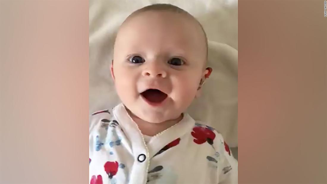 Watch deaf baby react as hearing aids are turned on